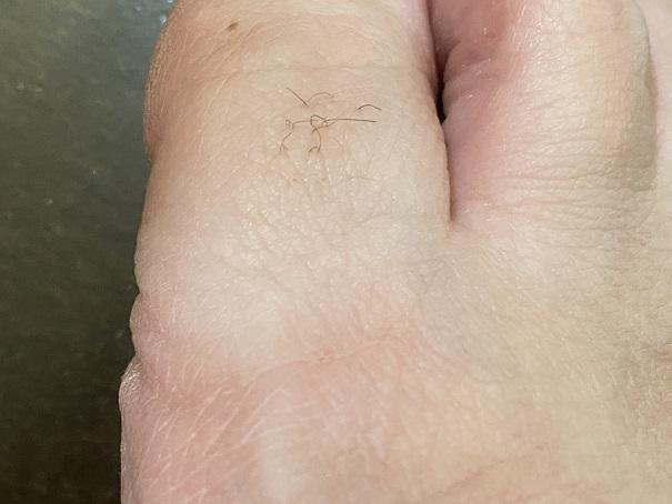 ケノン使用前 足の指右