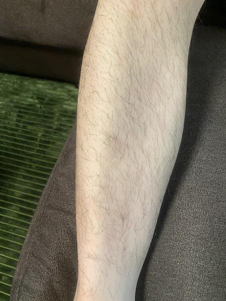 ケノン使用前 ひざ下の毛