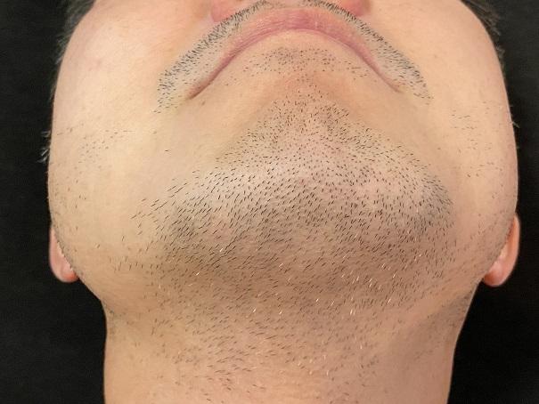 ケノン ヒゲ7回使用後顎